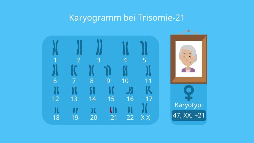 Karyogramm Frau, Trisomie 21, Chromosomenpaare, Mutation
